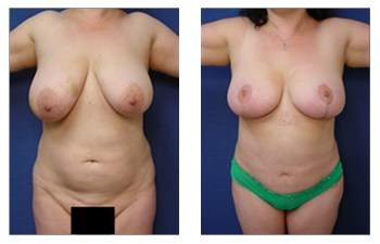 cheapest breast lift patient 10 front view