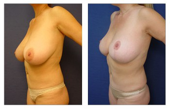 breast lift risks patient 12 front left view