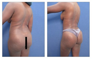 butt revision patient 1 back left view