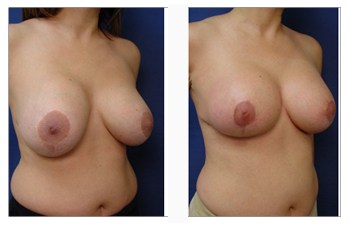 breast--patient-16-front-right image
