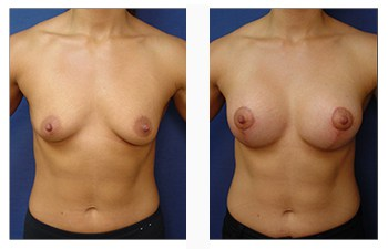 breast lift with implants scars