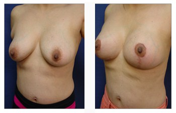 breast lift with implants patient 34 front left view