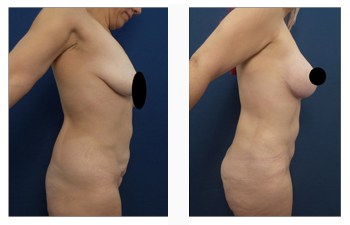 Breast Lift with Implants Price