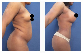 Brazilian Buttock Lift Revision Surgery