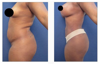 Brazilian Buttock lift revision surgery is reserved for patients who have been botched following Brazilian Buttock lift surgery