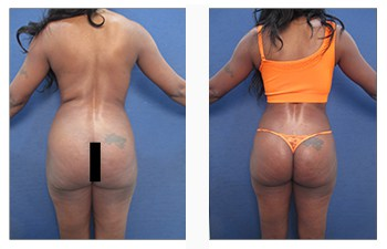 Liposuction revision with body contouring
