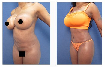 high definition liposuction of the flanks front left view