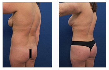 HD liposuction back left view