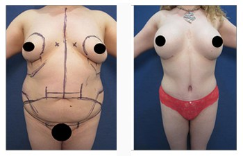 360 VASER liposuction before and after