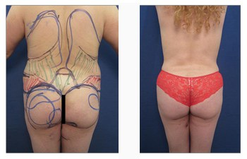 VASER 360 liposuction with BBL