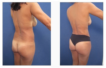 What to do if I got bad liposuction?