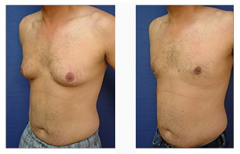 male breast surgery patient 10 front left view