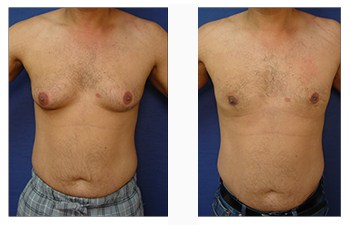 male breast surgery patient 10 front view
