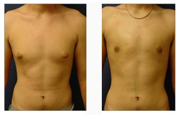 male breast surgery patient 4 front view