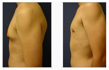 Gynecomastia with no scaring