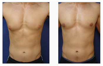 male breast surgery patient 8 front view
