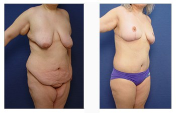 post bariatric breast lift patient 7 front right