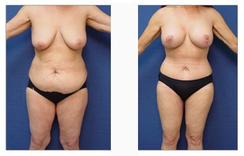 post-bariatric-surgery-patient-3-front - Total Body Lift image