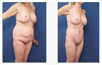 post bariatric surgery patient 4 front left