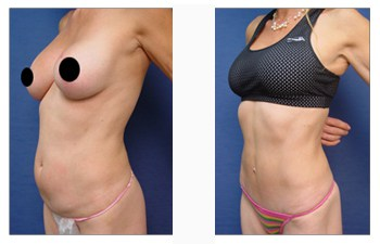 tummy tuck patient 1 front left view