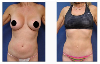 Abdominal Incision Beverly Hills