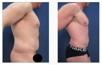 HD lipo for chest