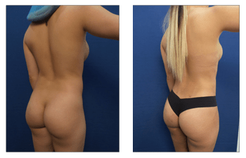 Brazilian Butt Lift Revision Before And After