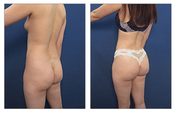 Brazilian Butt Lift Revision Cost