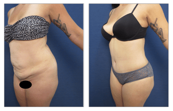 VASER lipo with tummy tuck