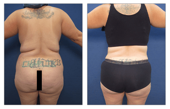 What Is The Cause Of Lipedema