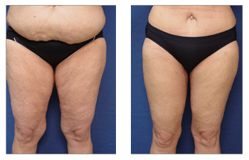 What Is The Difference Between Lipedema And Lymphedema