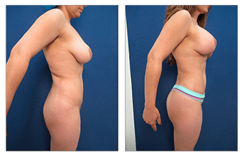 How Does High Definition Liposuction Tighten Your Skin