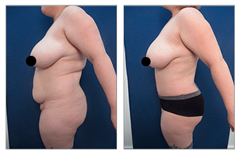 Cost of Liposuction And Tummy Tuck