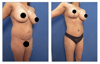 Best Liposuction, Tummy Tuck