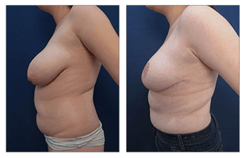 Breast Lift with Implant Exchange