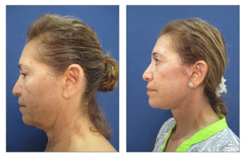 Get the best facelift results - Before and after surgery