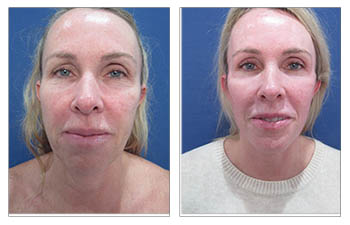 How is A FACELIFT surgery done?