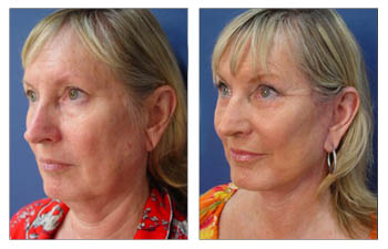 Face and neck lift San Diego - Ideal Earlobe Shape with Every Facelift