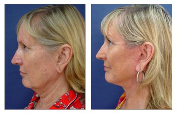Ideal Earlobe Shape with Every Facelift