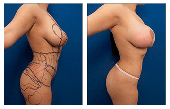 High Definition Liposuction