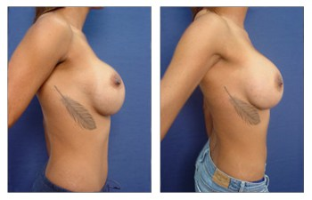 Results after Treatment of Bottoming out Following Breast Augmentation
