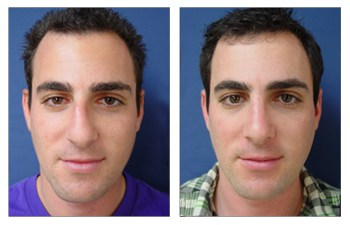 Closed Rhinoplasty Recovery