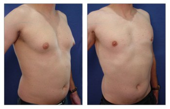 Before and after after gynecomastia surgery results