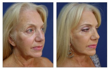 Face Lift and Neck - Facelift Recovery Time