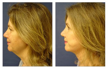 Neck Lift Surgery Before After Photos
