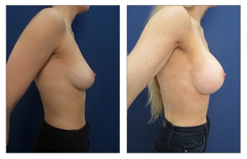 Silicone implants Dana Point