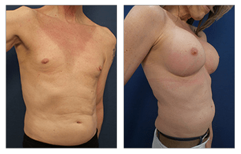 Transgender Male to Female Breast Surgery