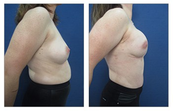 Will My Body Look Better After a Breast Reconstruction?