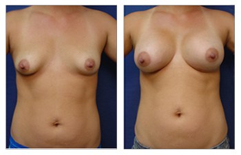 Breast Implant Augmentation, CPSI.