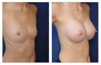 right front oblique Breast Implant Augmentation Recovery